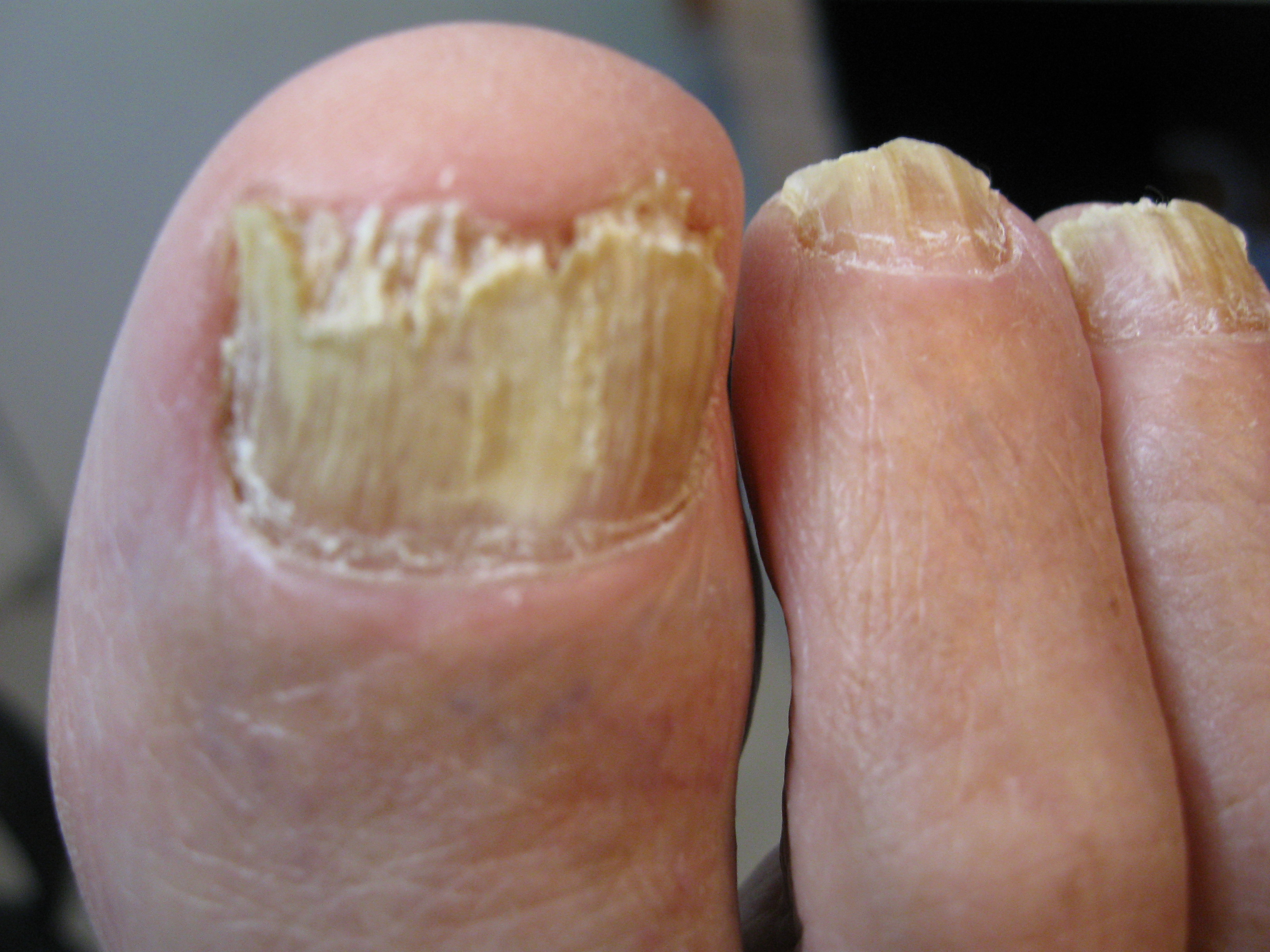 Toenail fungus pedicure Beautify themselves with sweet nails